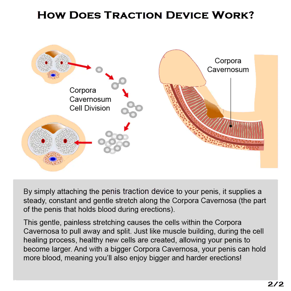 How does traction device work (2)